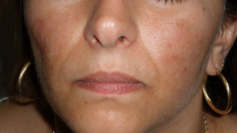 Acne 1 – Treatment with Intense Pulsed Light
