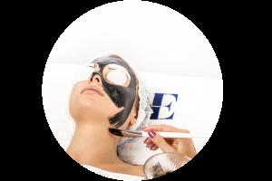 Carbon Peeling con VEGA QS EME Derma4