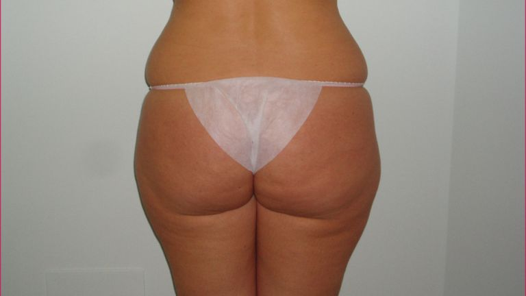 Body shaping 2 – Treatment with cavitation