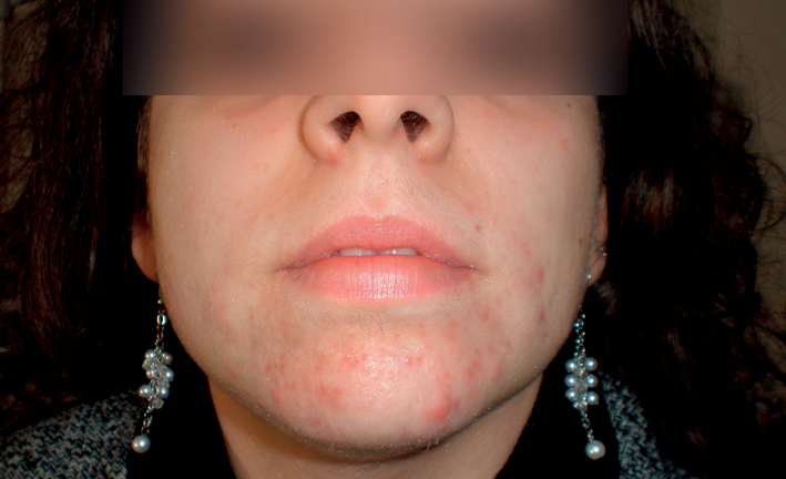 Acne 2 – Treatment with Intense Pulsed Light