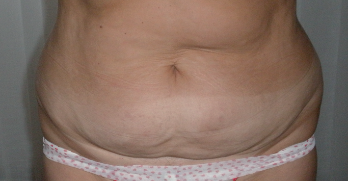 Body shaping – Treatment with cavitation