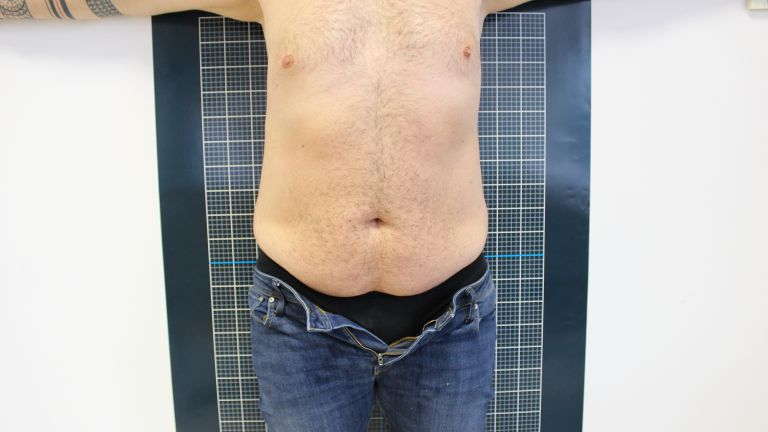 Body shaping 4 – Treatment with cavitation
