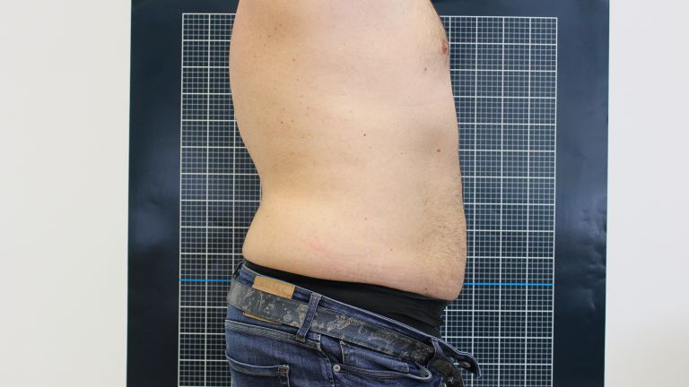 Body shaping 3 – Treatment with cavitation